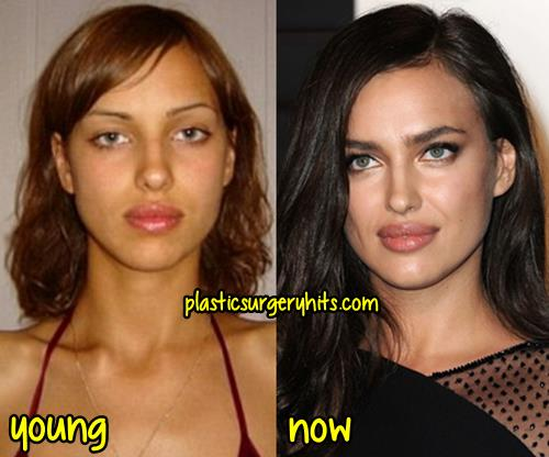 Irina Shayk Plastic Surgery Before And After 1