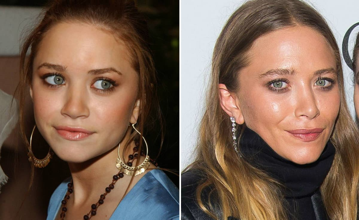 Marie Kate And Ashley Before Plastic Surgery 1