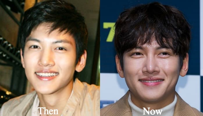 Nam Ji Hyun Before And After Plastic Surgery 1