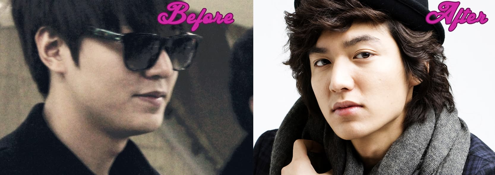 No Min Woo Plastic Surgery Before And After 1