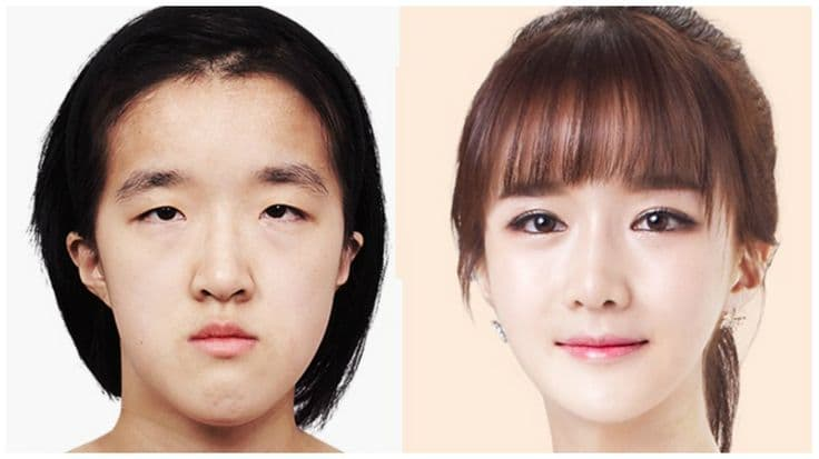 Plastic Surgery Before And After Korea South 1