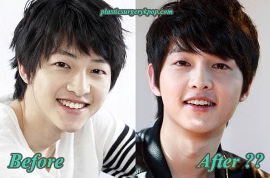 Song Ji Hyo Before And After Plastic Surgery 1
