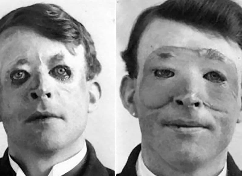 when was the first plastic surgery performed 1