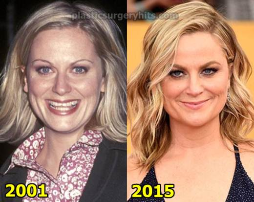 Amy Poehler Before And After Plastic Surgery 1