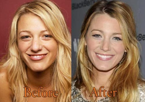 Blake Lively Plastic Surgery Before And Afer 1