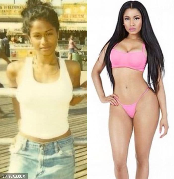 Colombian Women Before Plastic Surgery After 1