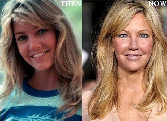 Emma Bunton Plastic Surgery Before And After 1