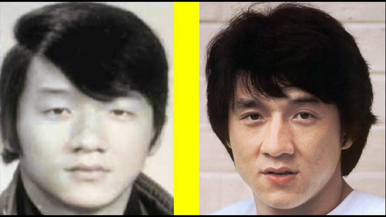 Jackie Chan Before And After Plastic Surgery 1