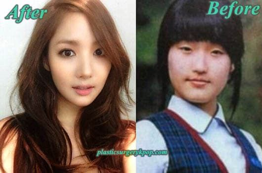 Jung So Min Before And After Plastic Surgery 1