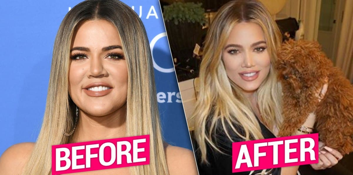 Kloe Kardashian Before After Plastic Surgery 1