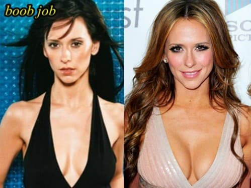 Linda Perez Before And After Plastic Surgery 1