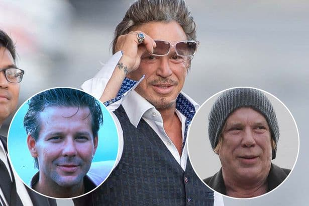 Micky Rouke Before And After Plastic Surgery 1