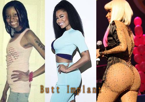 Plastic Surgery On Buttocks Before And After 1