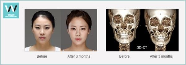 Shaving Jaw Before And After Plastic Surgery 1