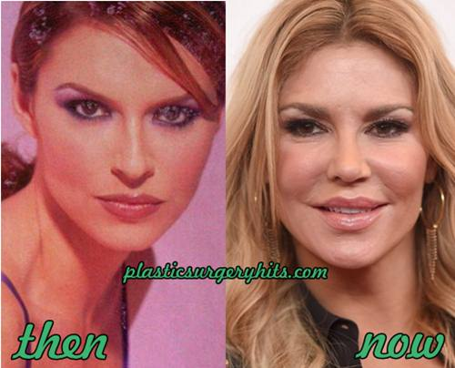 Brandi Glanville Plastic Surgery Before And After photo - 1