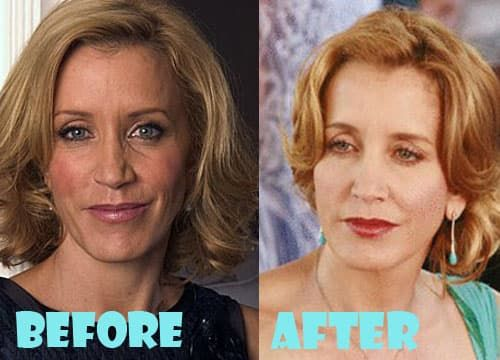 Felicity Huffman Before And After Plastic Surgery photo - 1