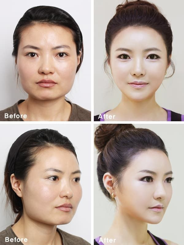 Plastic Surgery Korean Celebrity Before And After photo - 1