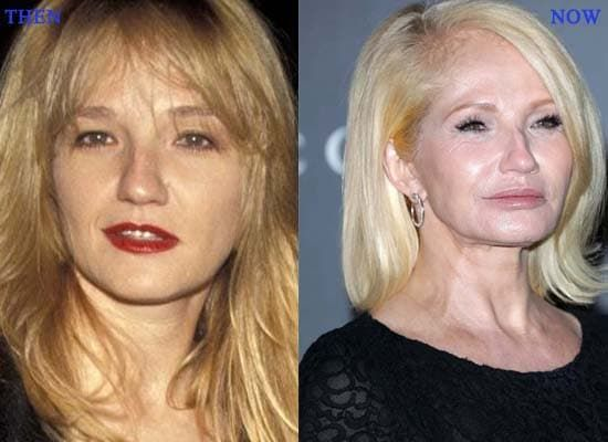 Show Carly Simon Plastic Surgery Before And After photo - 1