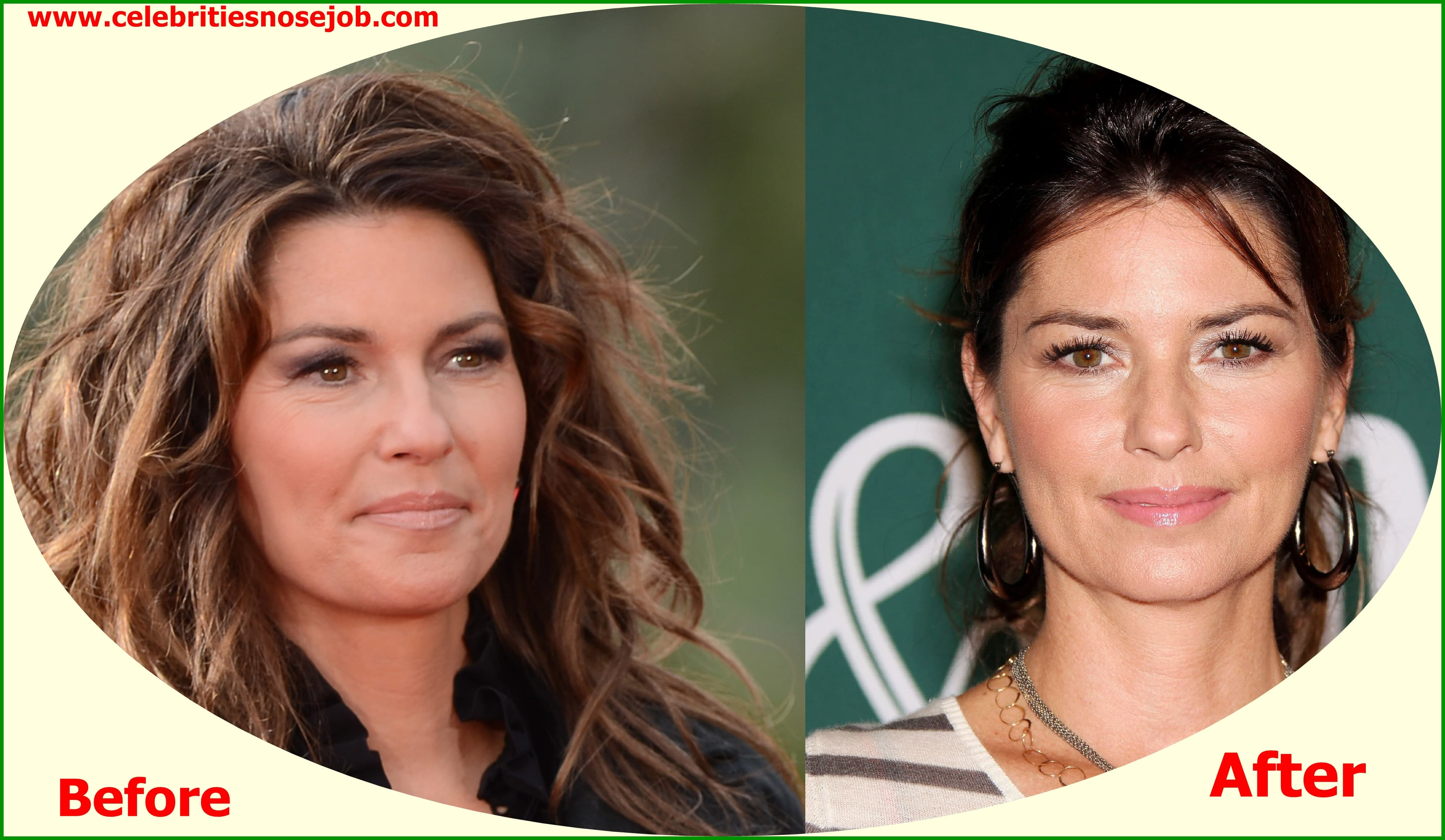 Celebrities Before And After Plastic Surgery 1