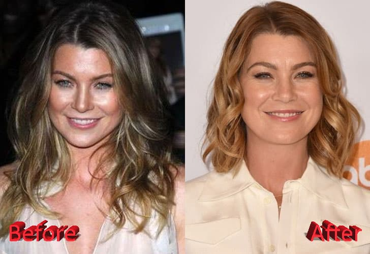 Ellen Pompeo Plastic Surgery Before And After 1