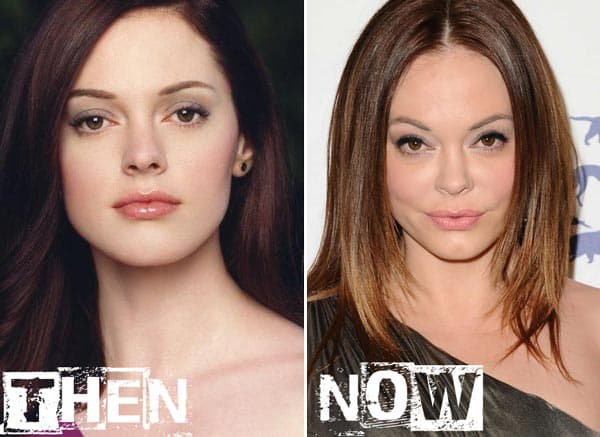Rose Mcgowan Before And After Plastic Surgery 1