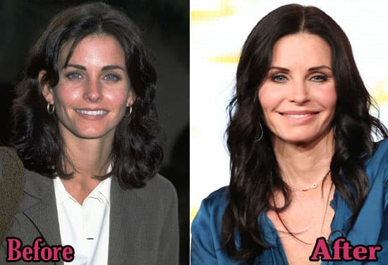Teri Hatcher Before And After Plastic Surgery 1