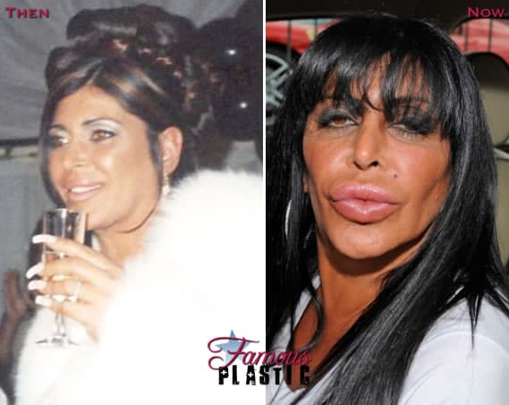 Big Ang From Mob Wives Before Plastic Surgery 1