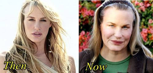 Daryl Hannah Before And After Plastic Surgery 1