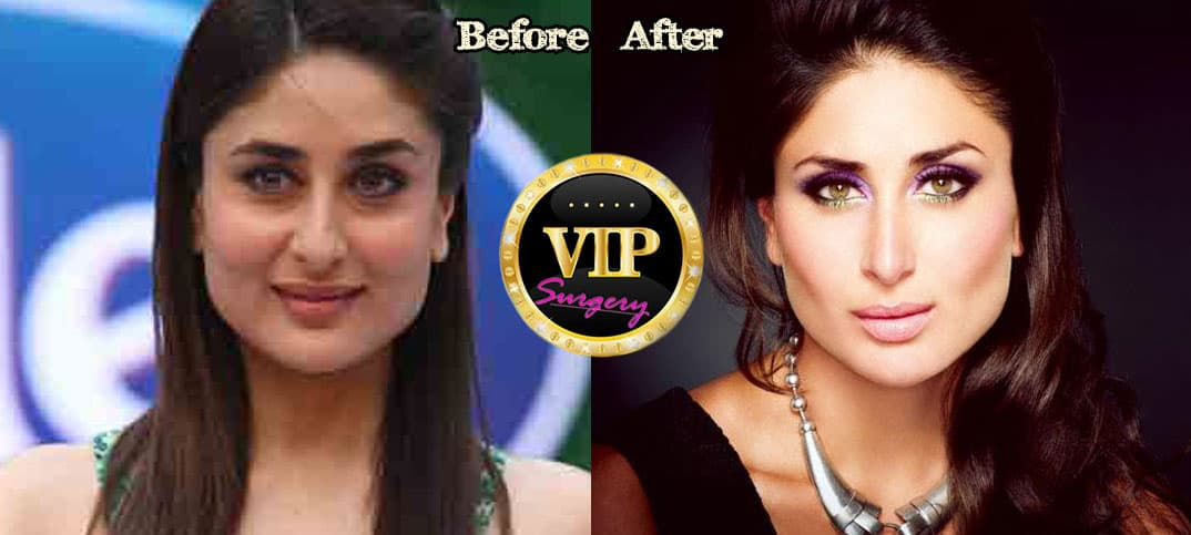 Sonam Kapoor Plastic Surgery Before And After 1
