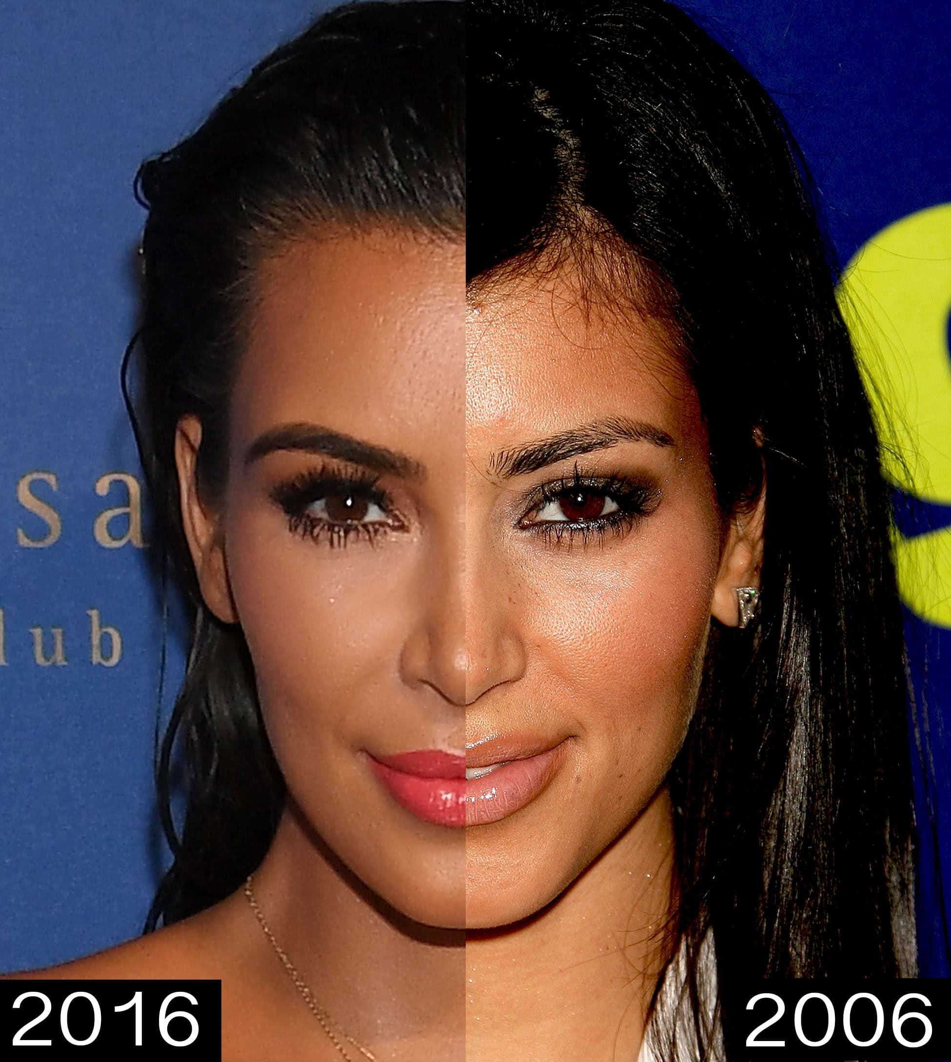 Before And After Kardashians Plastic Surgery 1