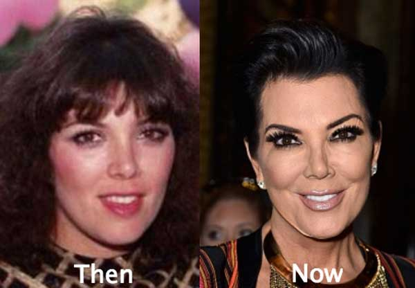 Chris Jenner Before And After Plastic Surgery 1