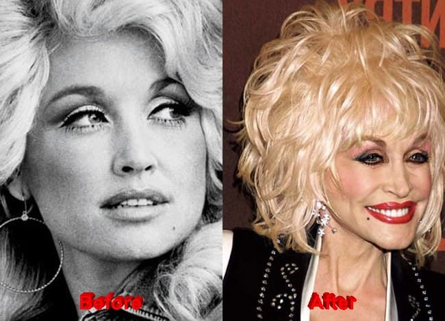 Dolly Parton Before Plastic Surgery And After 1