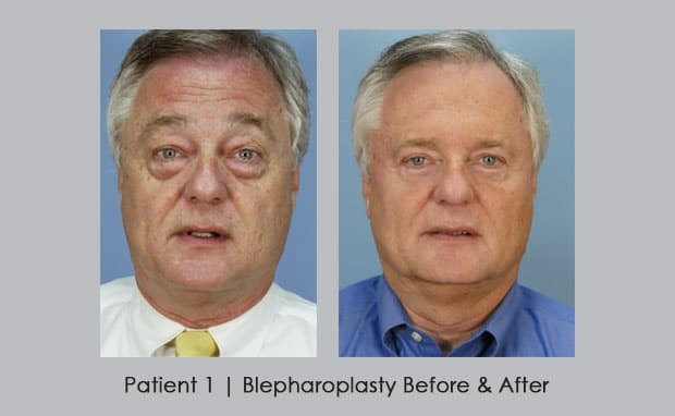 Eye Plastic Surgery Before And After Pictures 1