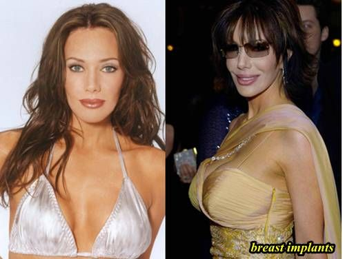 Hunter Tylo Plastic Surgery Before After Pics 1