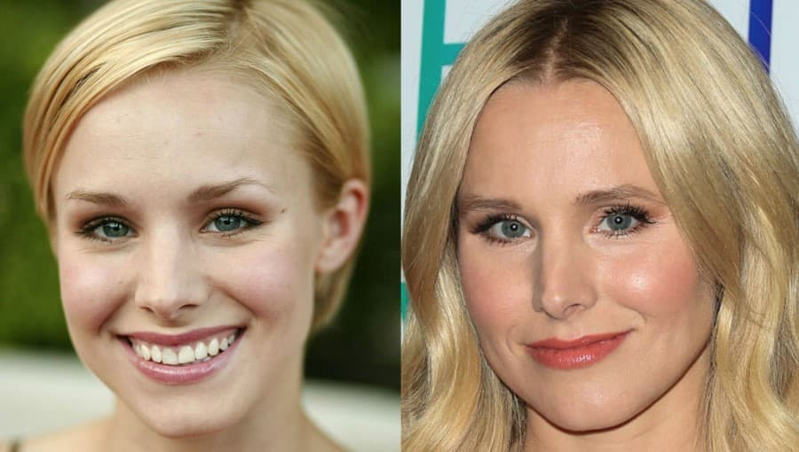 Kristen Bell Before And After Plastic Surgery 1