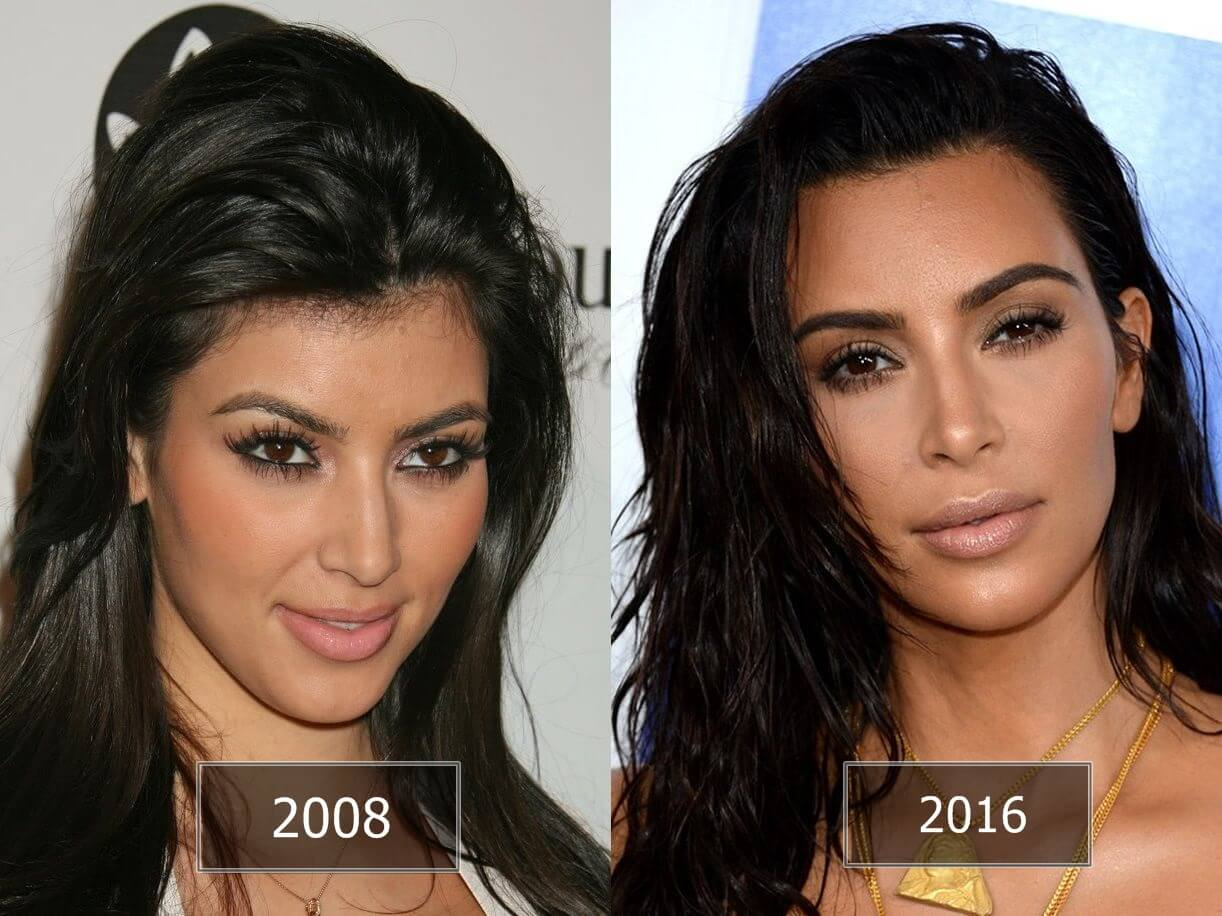Plastic Surgery Before And After Rhinoplasty 1