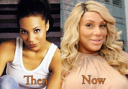 Toni Braxton Before And After Plastic Surgery 1
