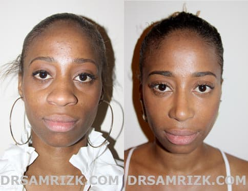 American Plastic Surgery Before And After Men 1
