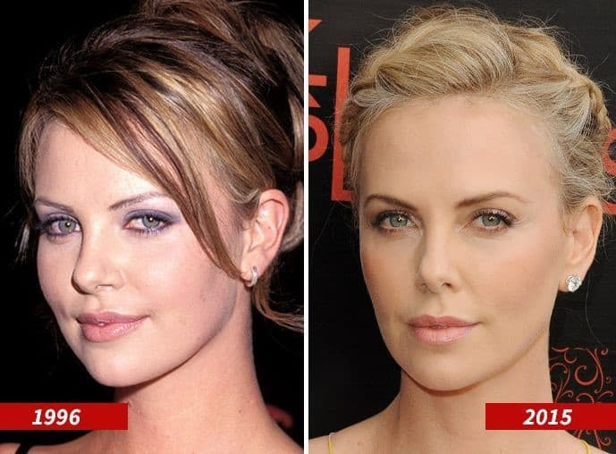 Anna And Lucy Decinque Before Plastic Surgery 1