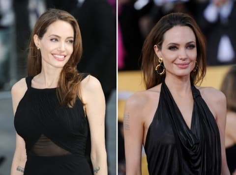 Angelina Jolie Before After Plastic Surgery 1