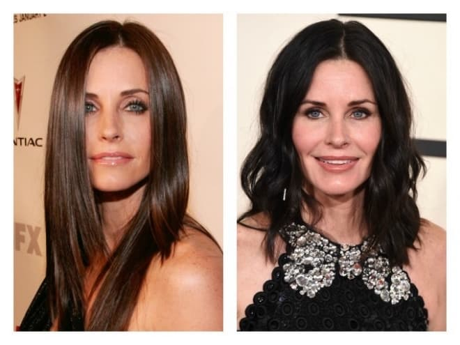 Celeb Plastic Surgery Before And After Photos 1