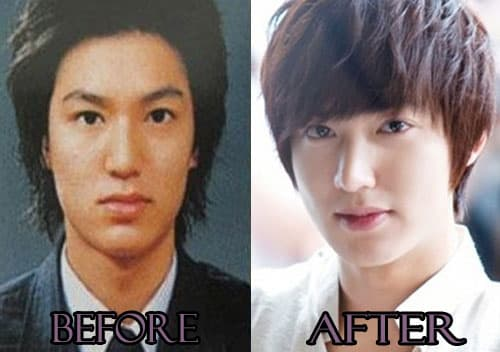 Choi Yeo Jin Plastic Surgery Before And After 1