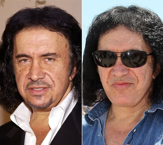 Gene Simmons Before And After Plastic Surgery 1