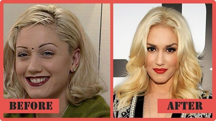 Gwen Stafani Before And After Plastic Surgery 1