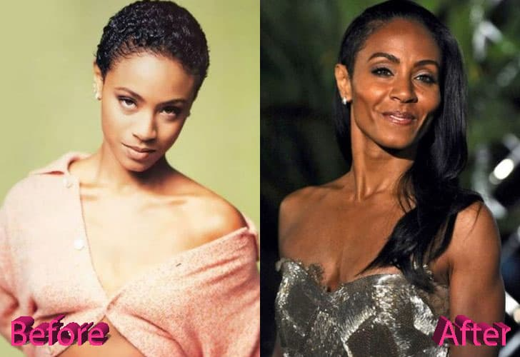 Jada Pinkett Plastic Surgery Before And After 1
