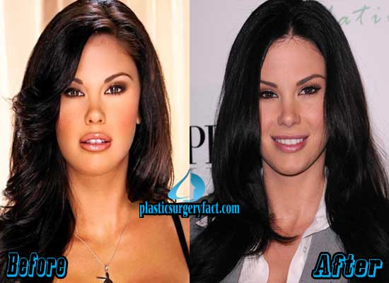 Jayde Nicole Before And After Plastic Surgery 1