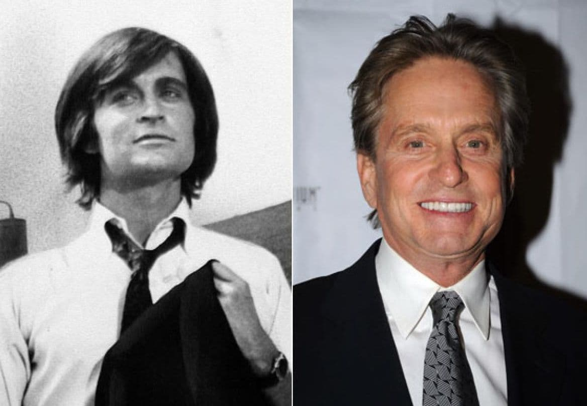 Kirk Douglas Plastic Surgery Before And After 1