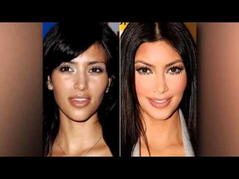 Kylie Jenner Before And After Surgery Plastic 1
