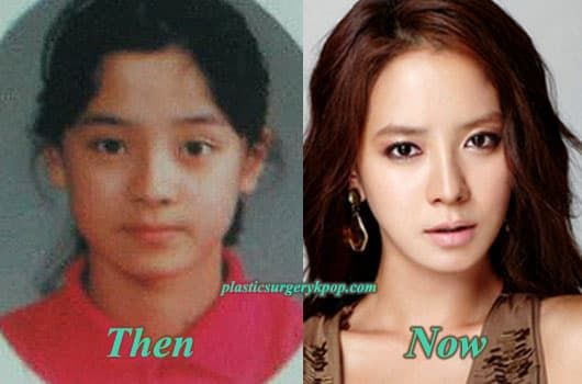 Lee Bo Young Before And After Plastic Surgery 1