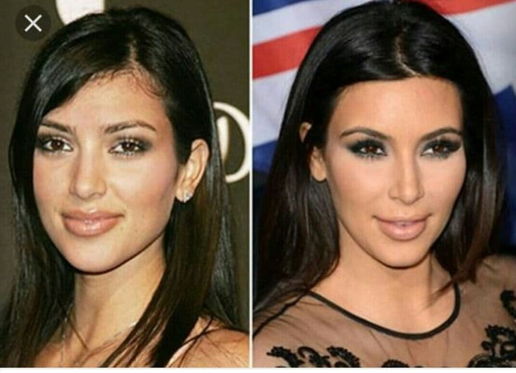 Lily Ghalici Before And After Plastic Surgery 1